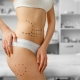 Clínica de Medicina y Cirugía Estética Mallen | Tratamientos de Abdomen